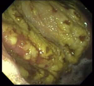 Endoscopic Exam of Equine Gastric Ulcers