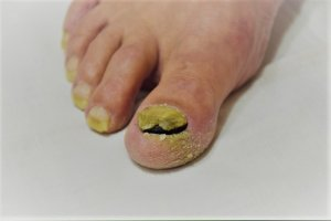 Nail Fungal Infection and Horse Hoof Health